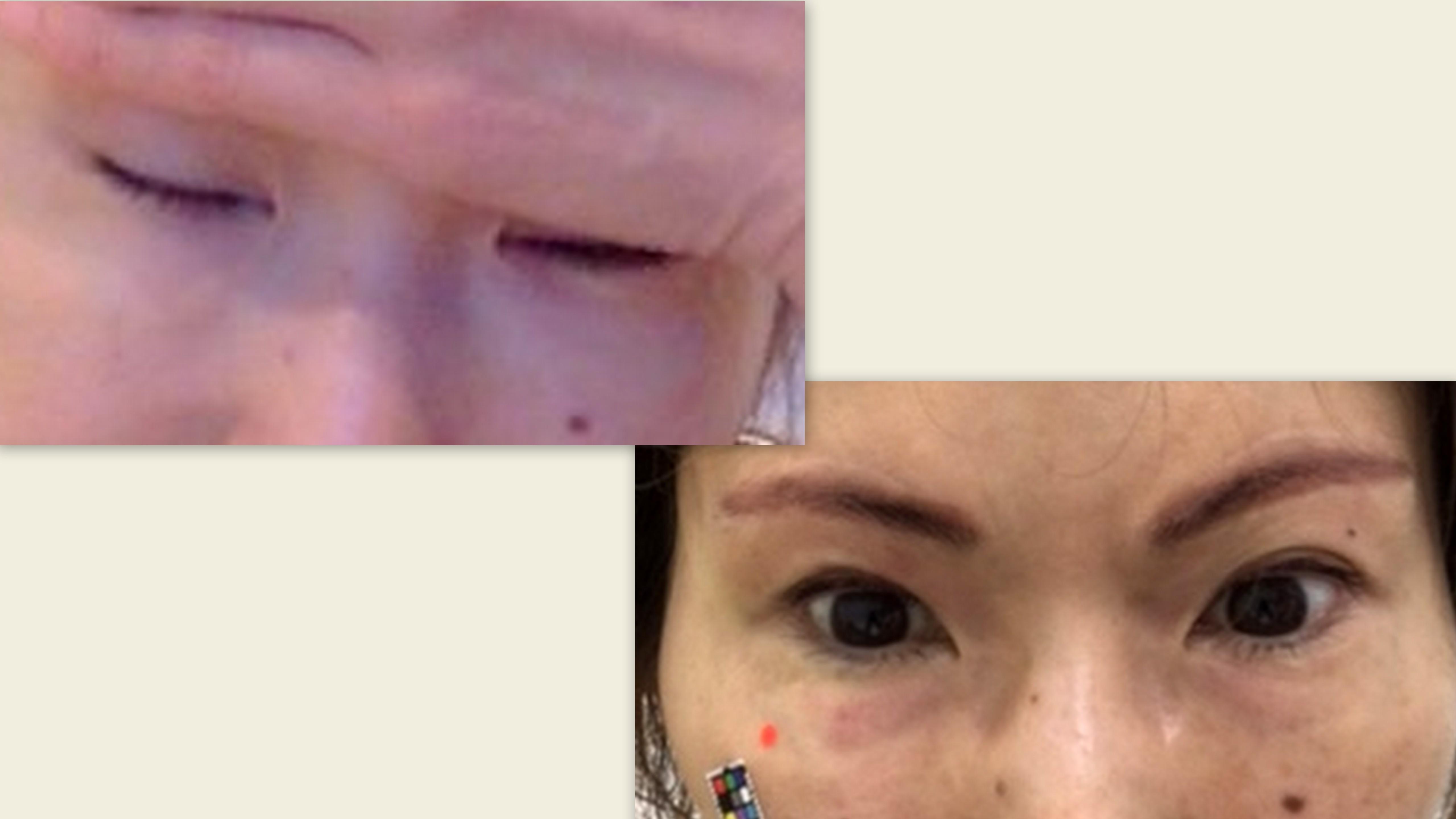 上 病院に行った時の目の状態下 目薬を点けた後の、右目